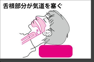 閉塞性睡眠時無呼吸症候群の図